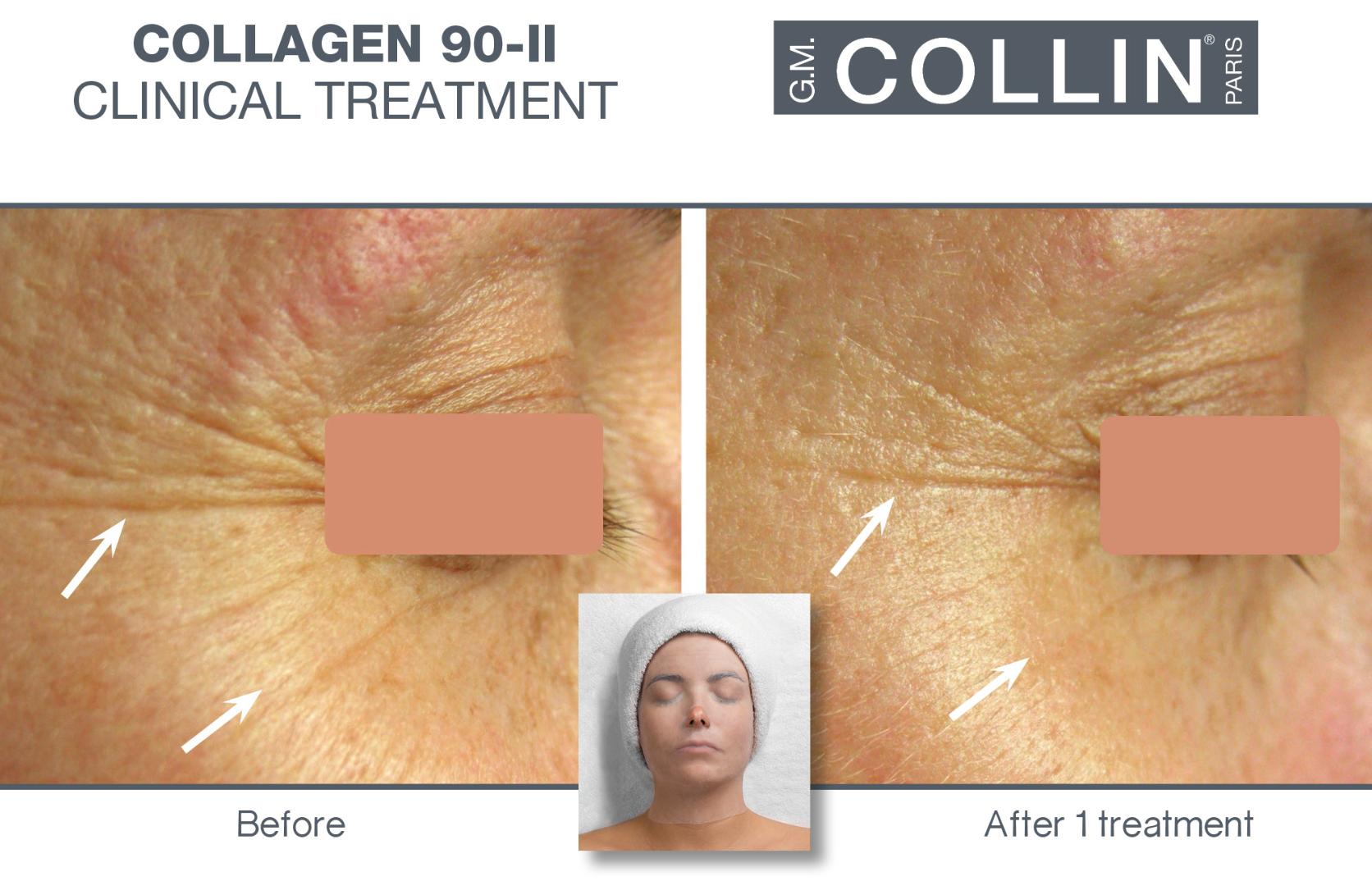 collagen-90-ii