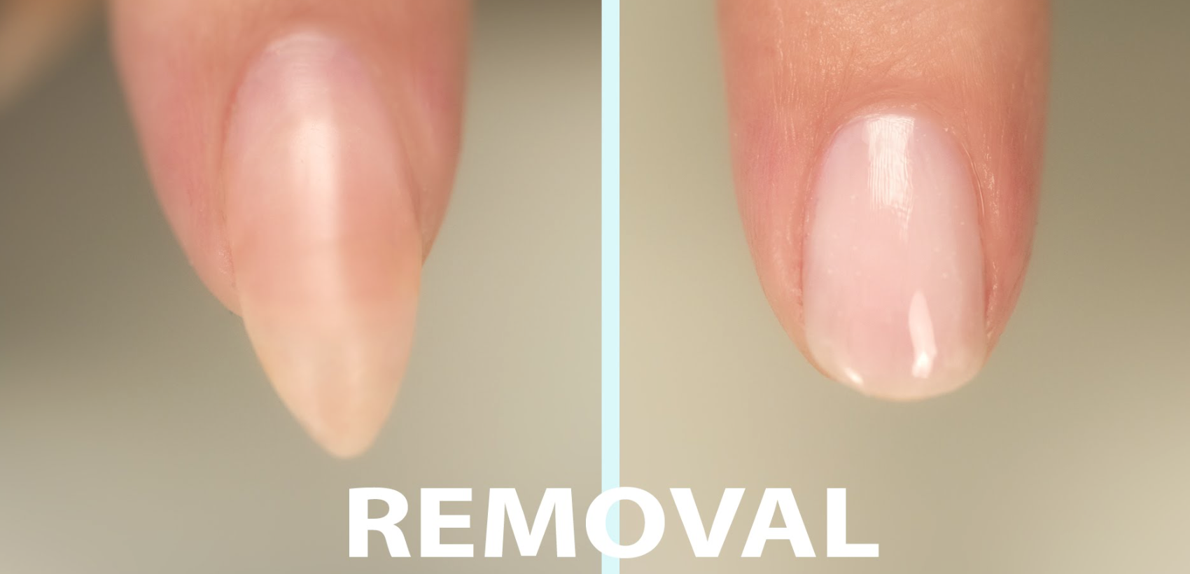 false nail removal