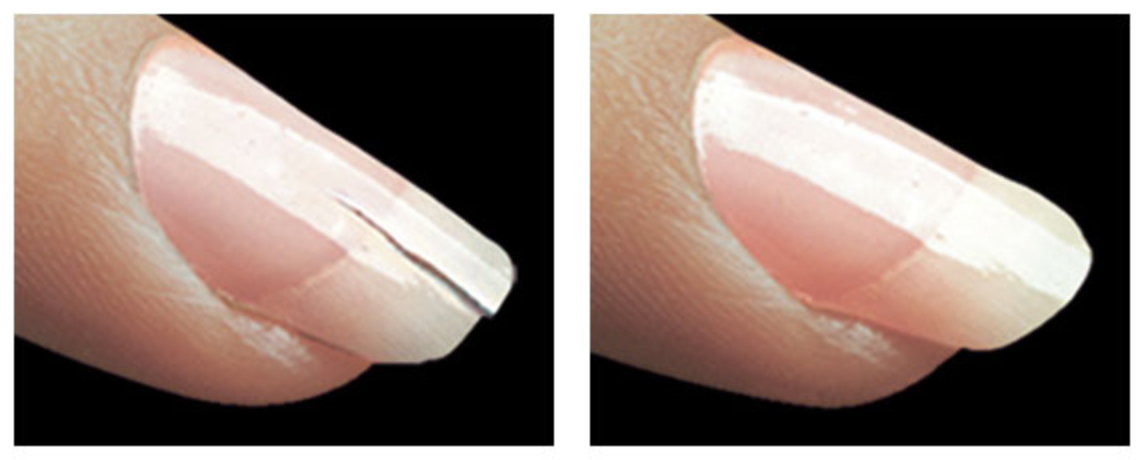 fingernail repair