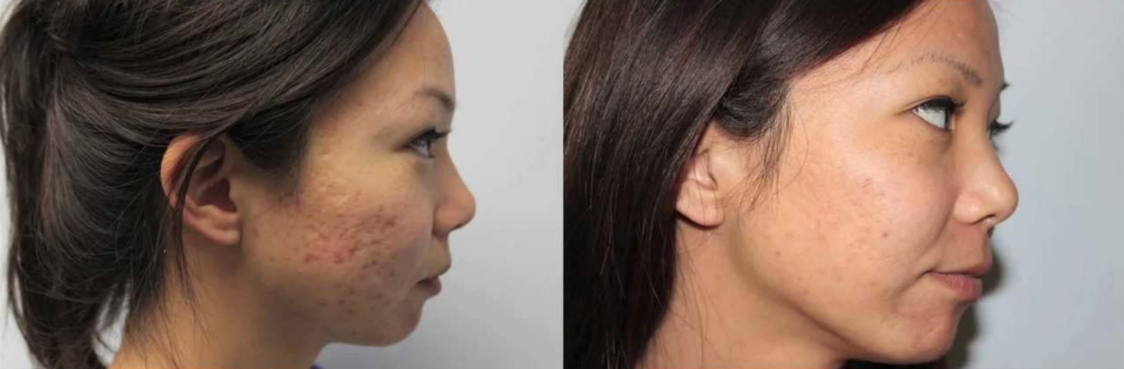 ipl laser acne treatment