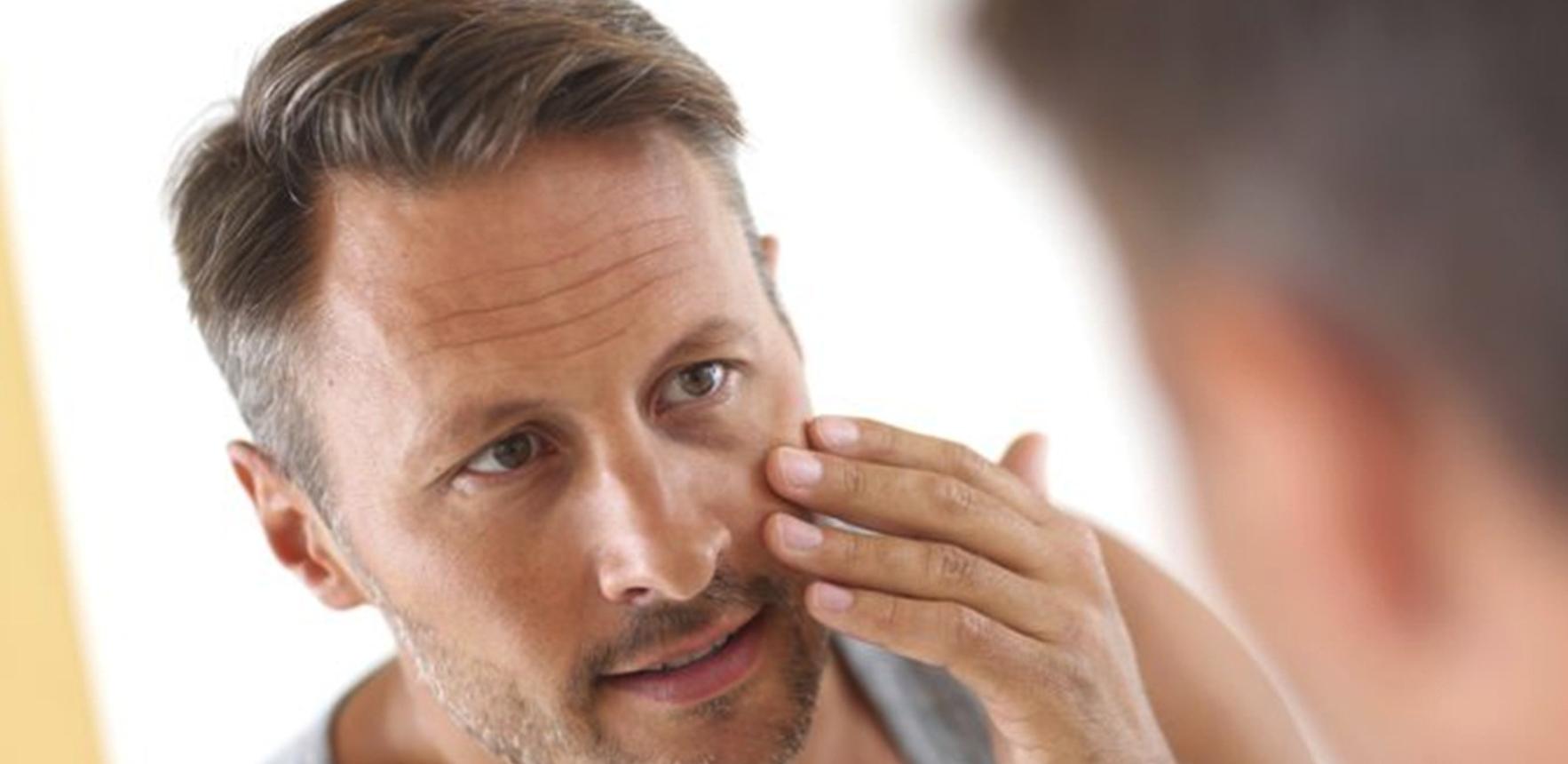 men's dry skin