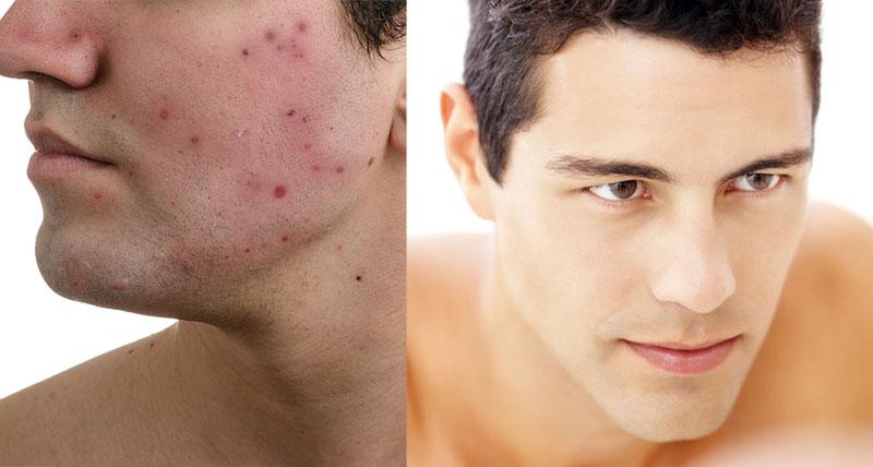 men acne treatment package