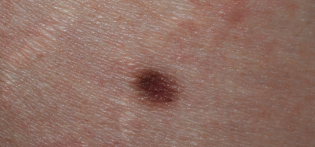 pigmented lesions laser treatment