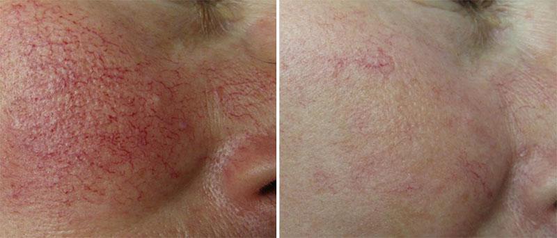 vascular lesions laser treatment