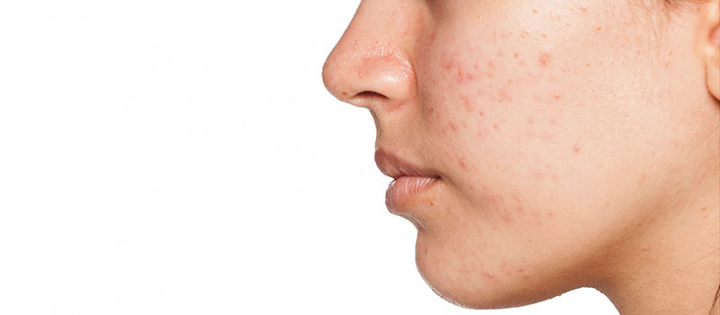 acne-facials
