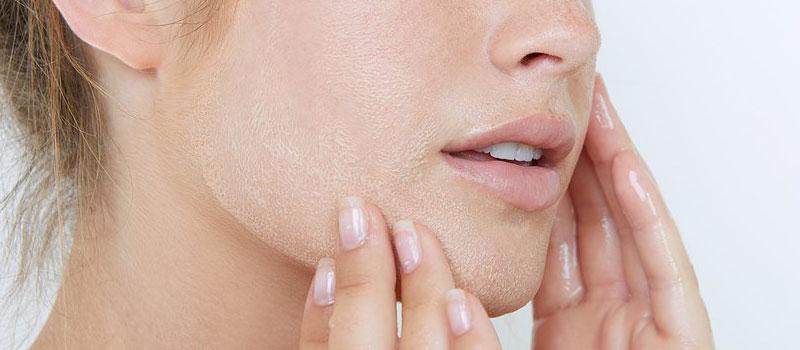 sensitive and unbalanced skin facials