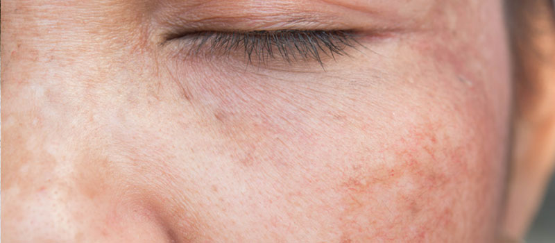 sun damage and uneven pigmentation facials