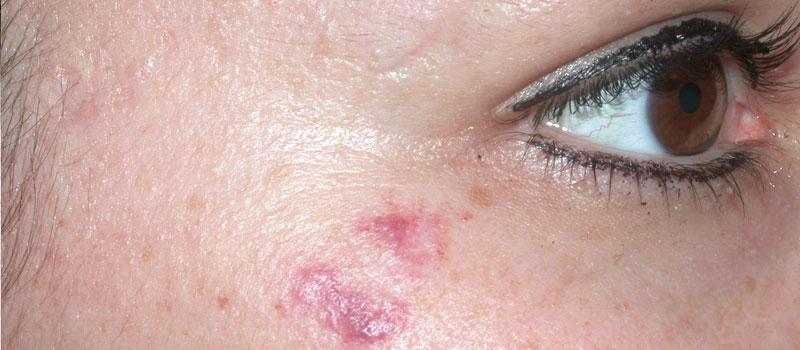 vascular skin facials
