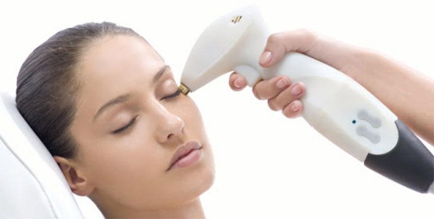 laser skin treatments calgary